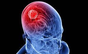 giornata-diagnosi-tumori-testa-collo