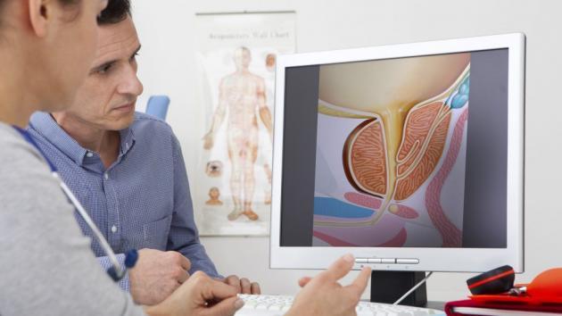 embolizzazione prostata radiologia clinica napoli rome