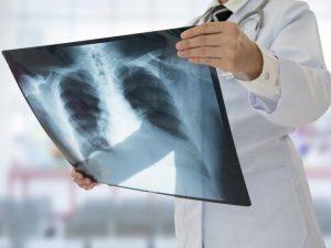 Tumore al polmone: immunoterapia aumenta la sopravvivenza globale a 5 anni